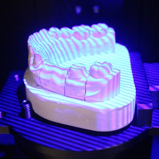 Dental Scanner 3D Dental Laboratory